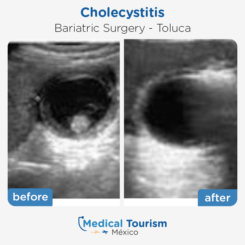 Bariatric surgery before and after of patients in                 Toluca