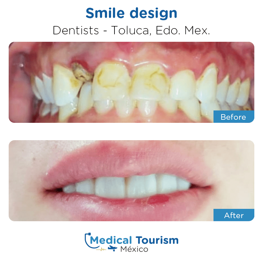 dental before and after of patients                  in Toluca