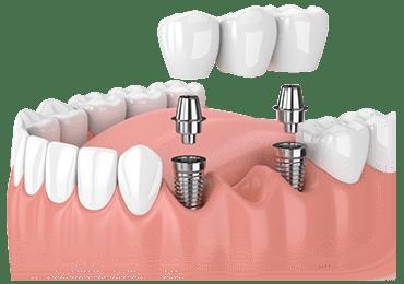 Illustrative image for 3 unit bridge procedure