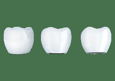 Illustrative image for dental crown procedure