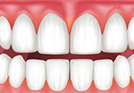 Receding gums