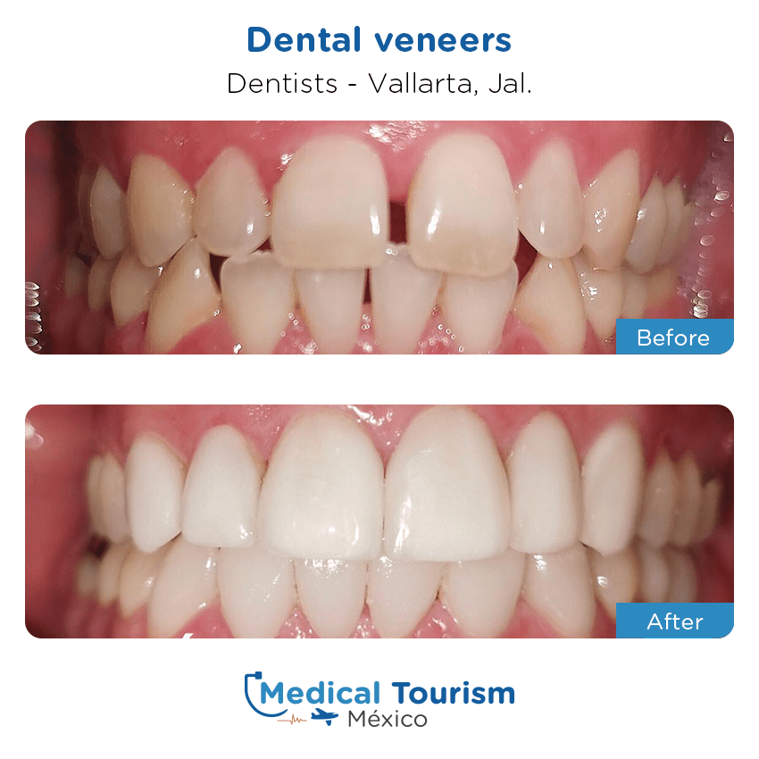 dental before and after of patients                  in Vallarta