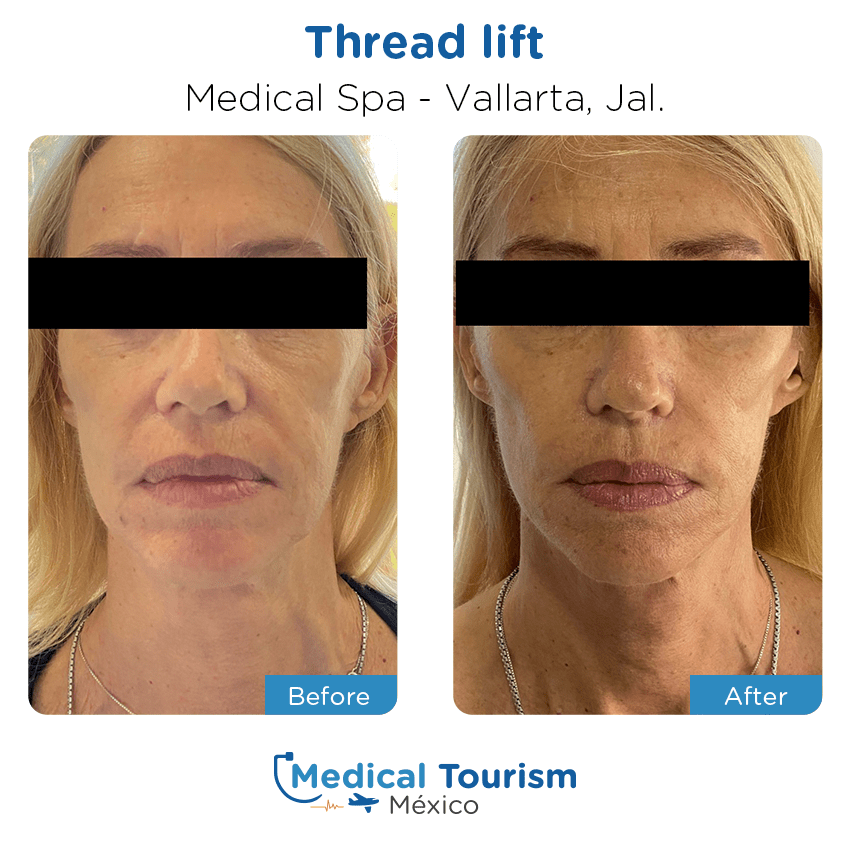 aesthetic medicine before and after of patients                  in Vallarta